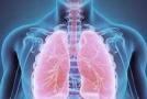 Įsitikinkite, ar nesergate sunkia ir klastinga lėtine obstrukcine plaučių liga